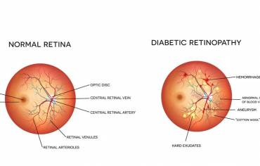 How can an eye exam detect diabetes?