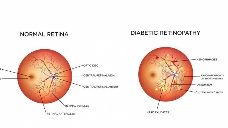 How can an eye exam detect diabetes?